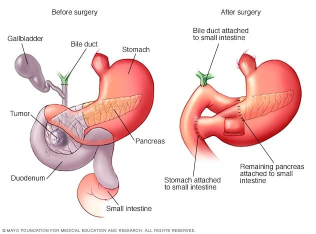 Surgery for Pancreatic Cancer (Overview) - THE OLIVE LABORATORY